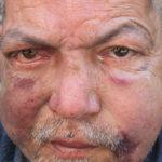 Schwer verletzt und misshandelt